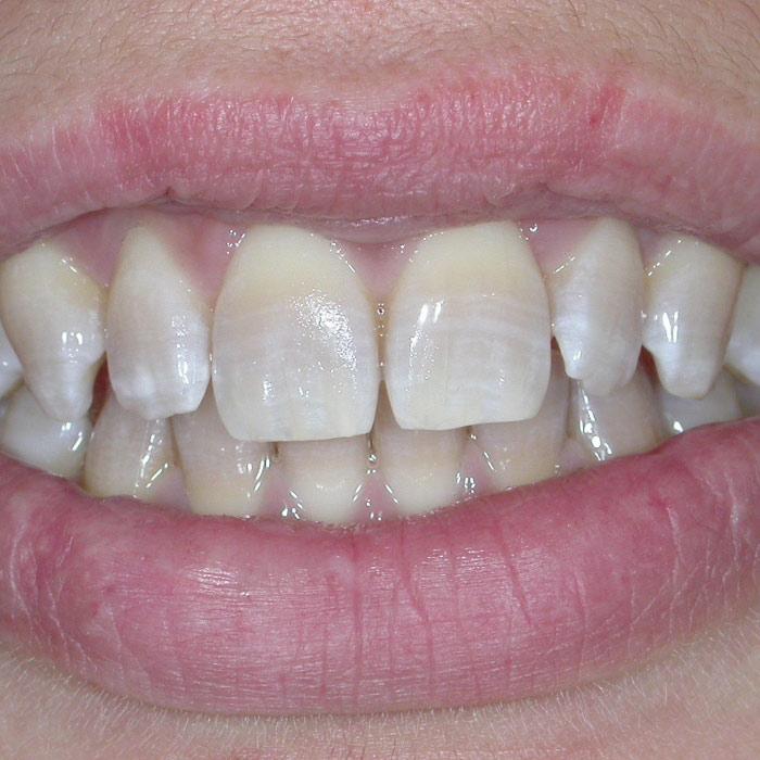 Sbiancamento Dopo | I nostri casi | Dentista a Castelnuovo del Garda | Studio Dentistico Bonetti