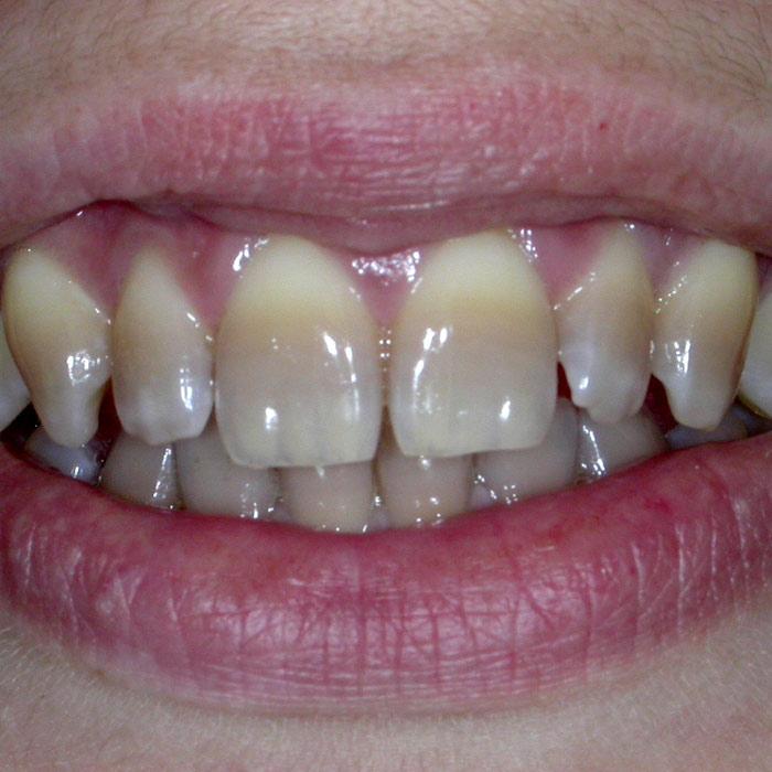 Sbiancamento Prima | I nostri casi | Dentista a Castelnuovo del Garda | Studio Dentistico Bonetti