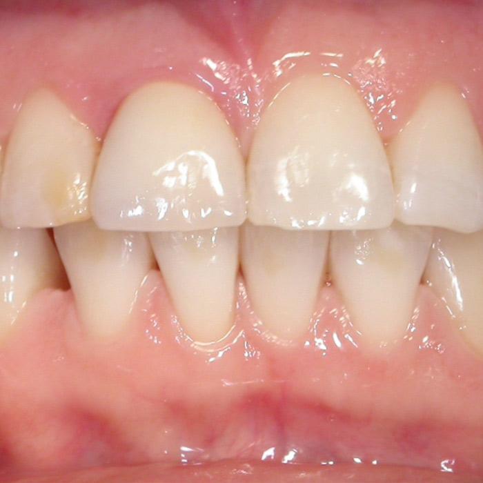 Impianti Dopo | I nostri casi | Dentista a Castelnuovo del Garda | Studio Dentistico Bonetti