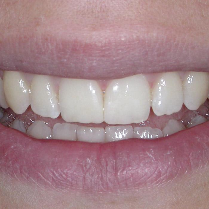 Ricostruzione Dopo | I nostri casi | Dentista a Castelnuovo del Garda | Studio Dentistico Bonetti