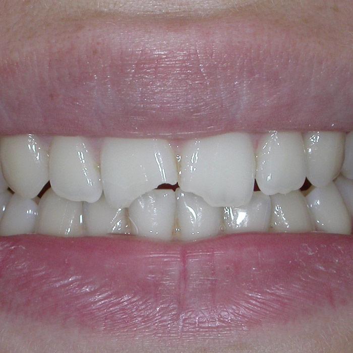 Ricostruzione Prima | I nostri casi | Dentista a Castelnuovo del Garda | Studio Dentistico Bonetti