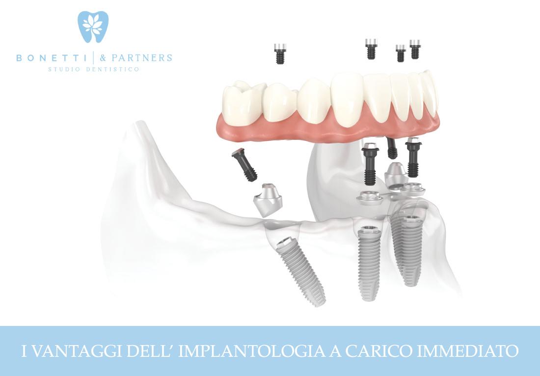 I vantaggi dell'implantologia a carico immediato | News | Studio Dentistico Bonetti