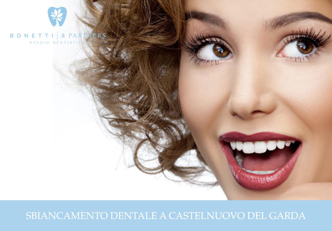 Sbiancamento dentale a Castelnuovo del Garda   News   Studio Dentistico Bonetti